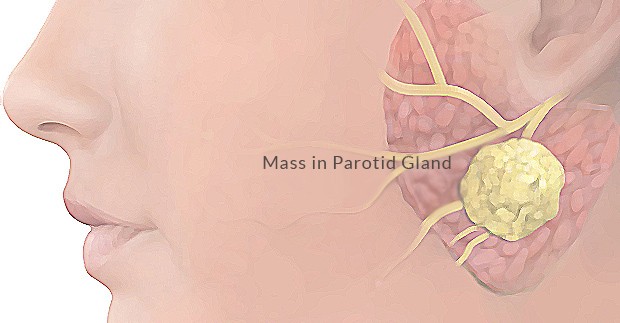 parotidectomy - parotid salivary gland surgery